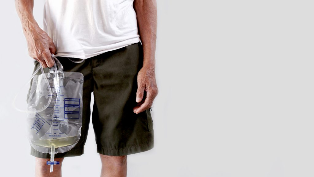 Man holding urinary collection bag used with Foley catheter.